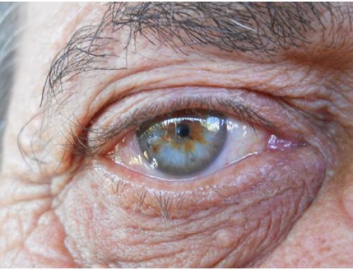 Alzheimer: present decebedor, futur prometedor